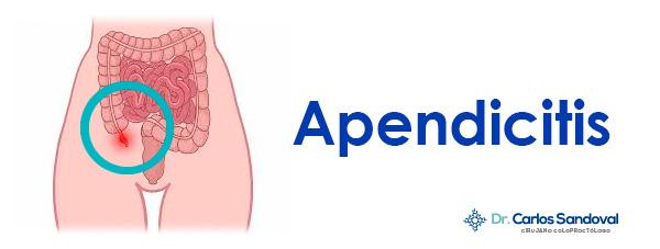 Apendicitis Toluca